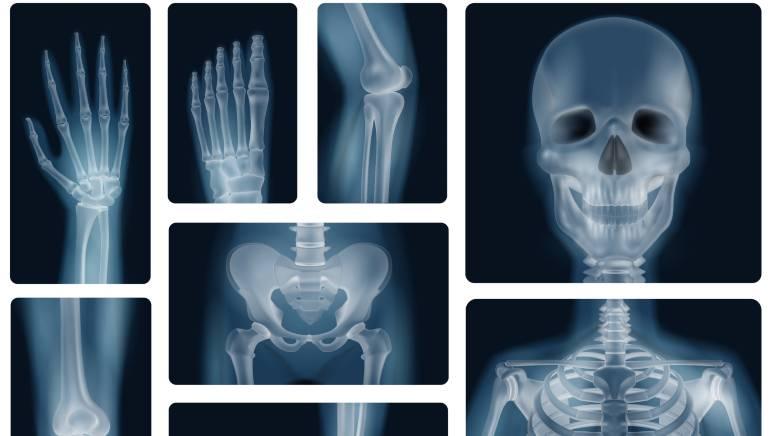 विटामिन डी की कमी से आप ओस्टियोपोरोसिस जैसे गंभीर समस्याओं से ग्रस्त हो सकते है। चित्र: शटरस्टॉक