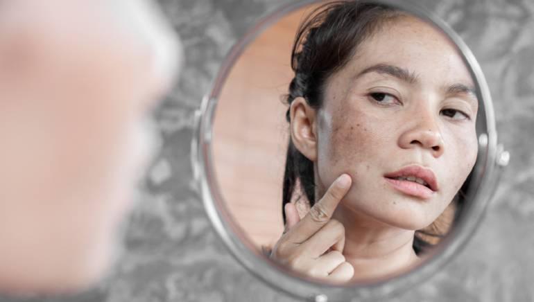 मोहरीच्या दाण्यामुळे सूर्य प्रकाशाने होणारा त्वचेचा क्षोभ बरा होतो  चित्र- शटरस्टॉक.