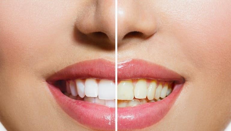 या पद्धतीने आपले दात चमकदार, पिक्चर-शटरस्टॉक बनवा.