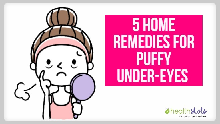 5 simple home remedies to get rid of puffy eyes that actually work!