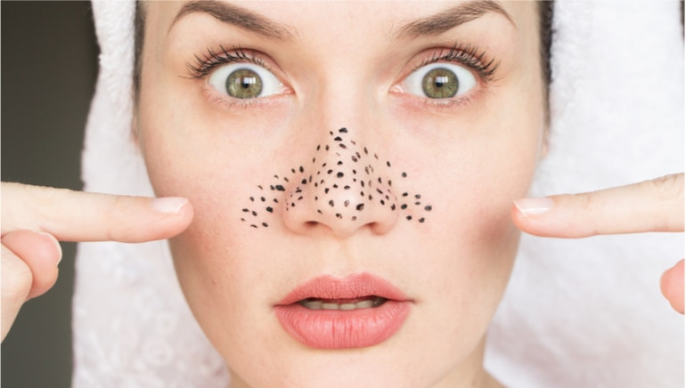 These 7 home remedies will help you shrink those enlarged pores naturally